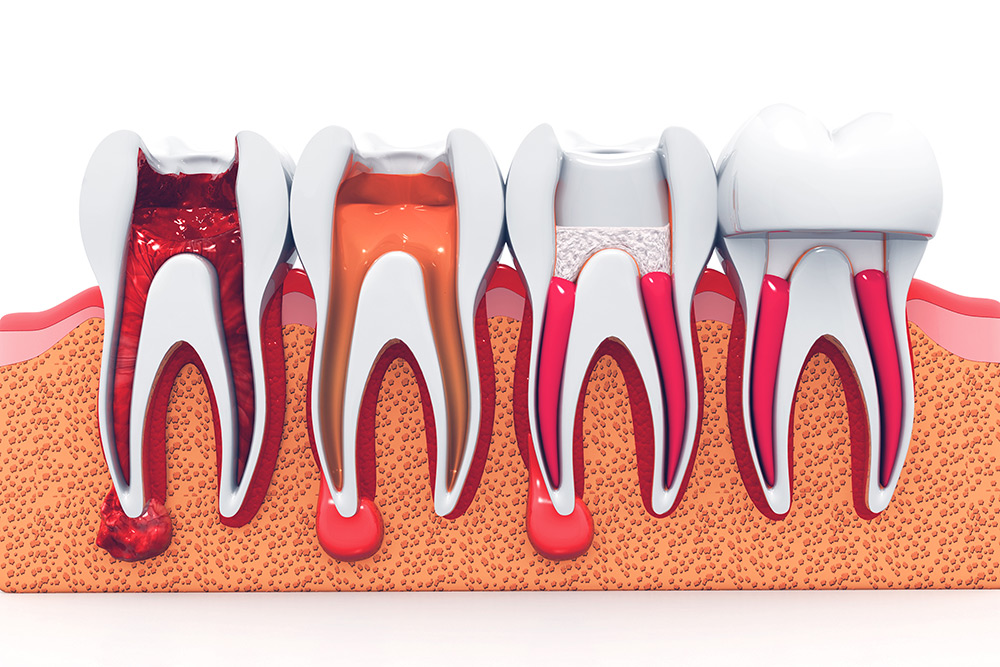 Root Canal Treatment – Berry Lane Dental Surgery  Dentists